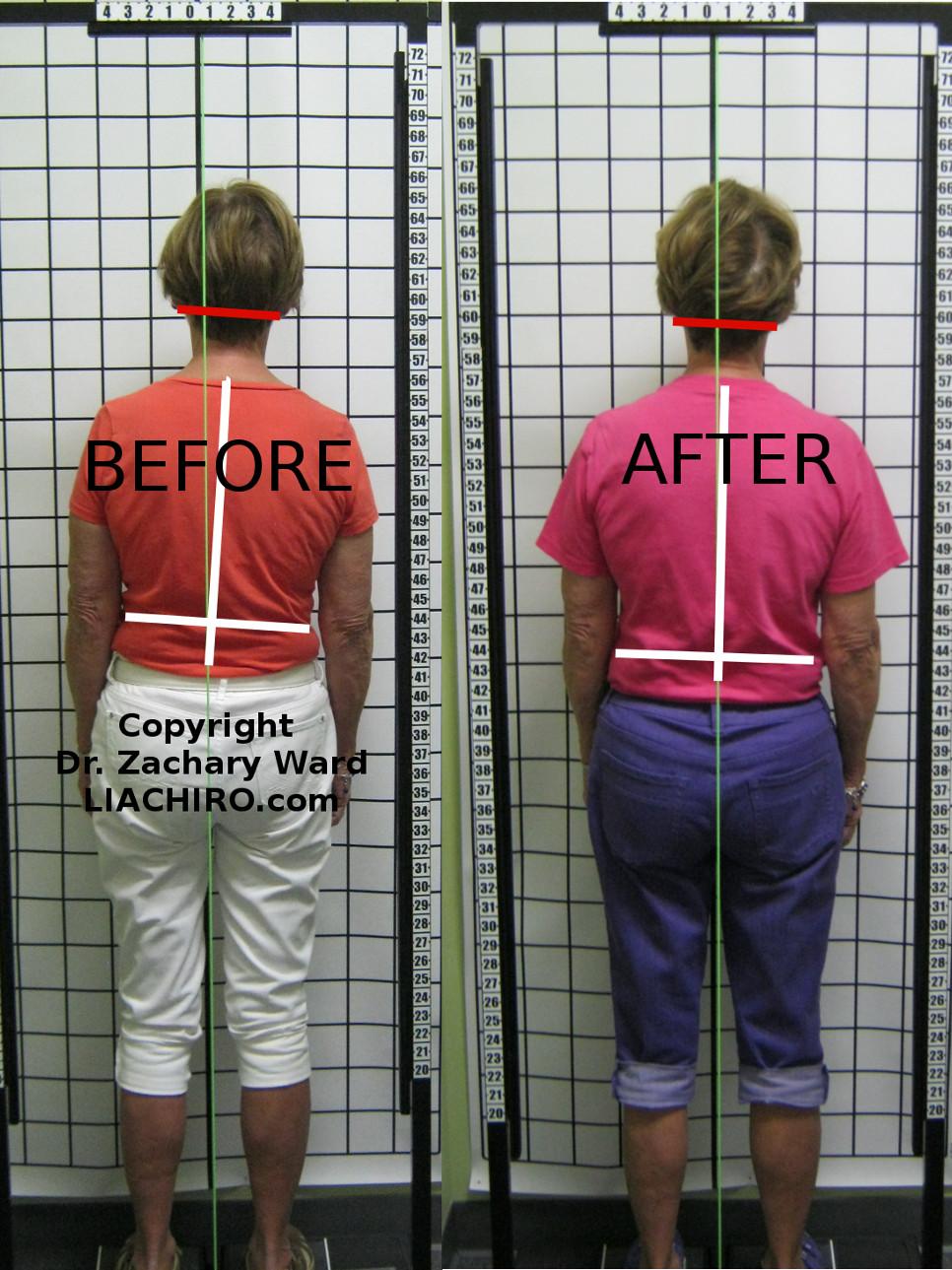 Sciatica posture shift upper cervical chiropractic care