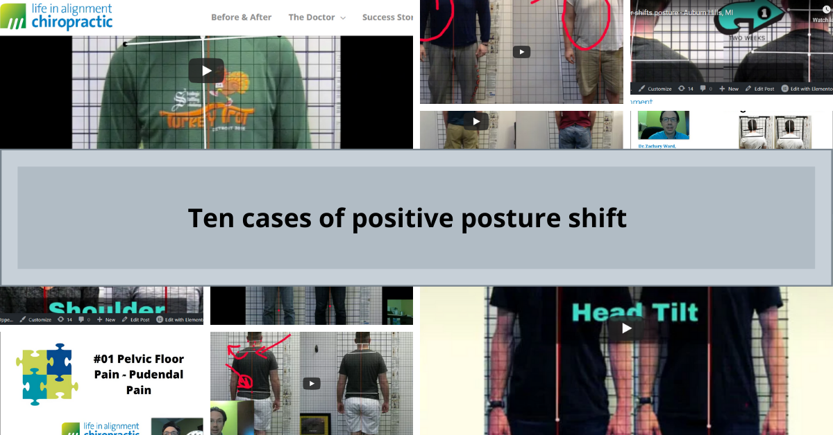 10 cases of posture shift after chiropractic